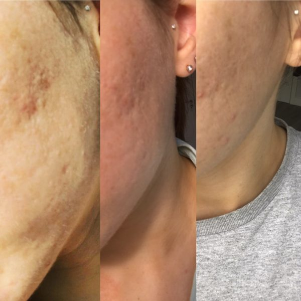Jessica's Acne Scarring Results with Dr. Derm