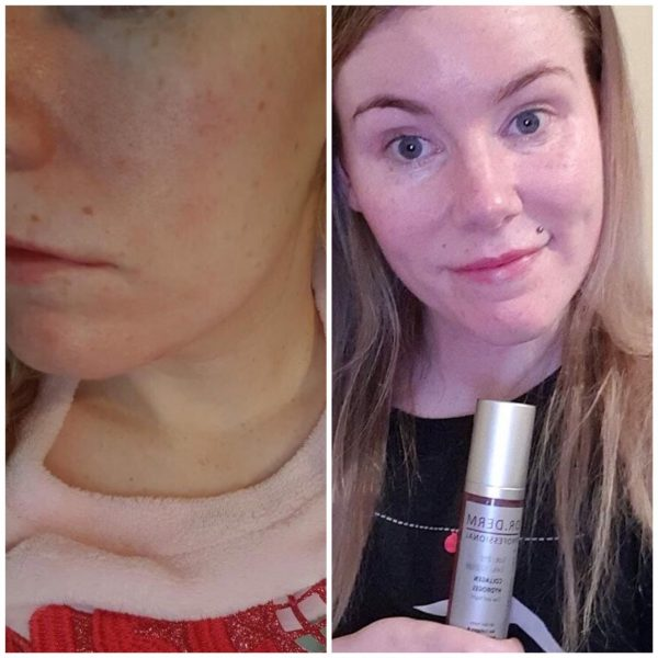 Dawn's Results with Dr. Derm