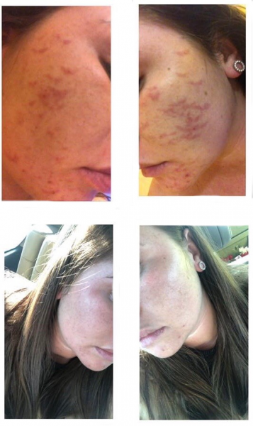 Dione's Results from using Dr. Derm
