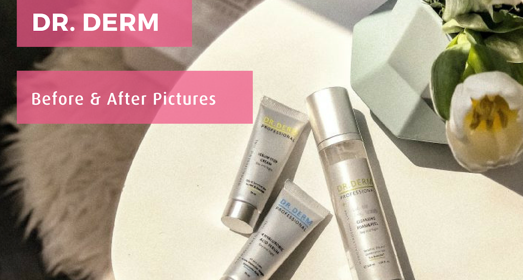 Dr Derm Before and After Pictures